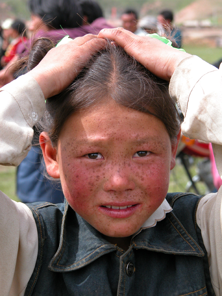 Freckled Girl of Sichuan, China